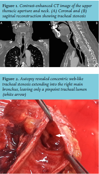 Article: Traumatic tracheal intubation: An uncommon cause of acute ...